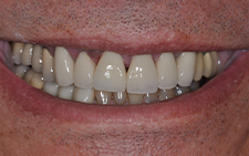Front view of beautiful smile after dental treatment