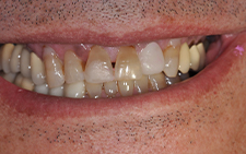 Front view of damaged smile before dental treatment