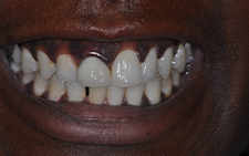 Smile before cosmetic dentistry