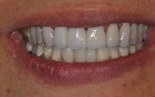 Smile with new natural looking dental restorations