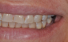 Left side view of smile after replacing missing tooth