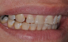 Right side view of smile with large gaps before orthodontics