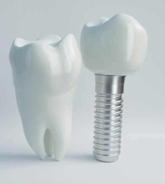 dental implant with crown next to natural tooth
