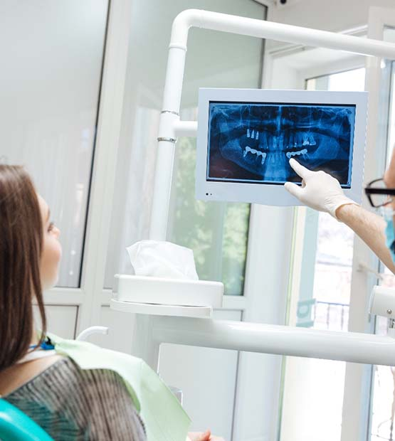 Woman pointing to her smile after dental implant tooth replacement