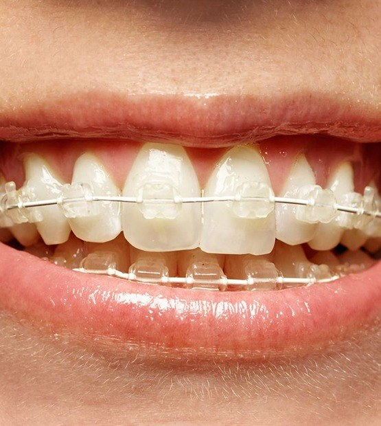 Teeth with six month smiles ceramic braces