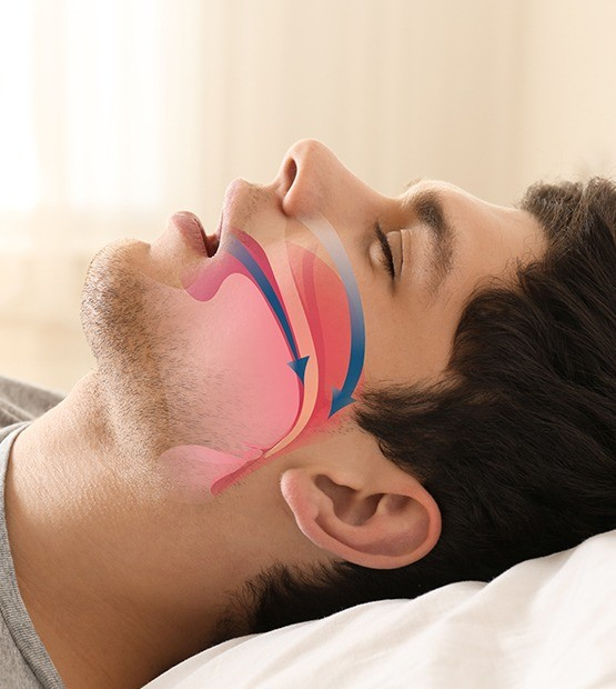 Snoring man in need of sleep apnea therapy