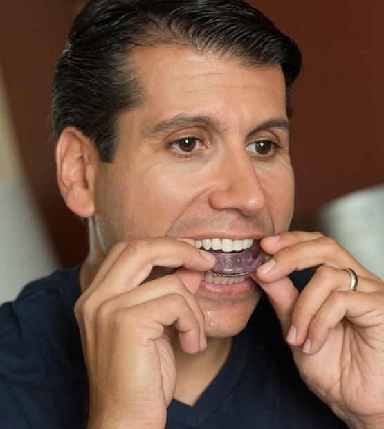 Man placing an oral appliance
