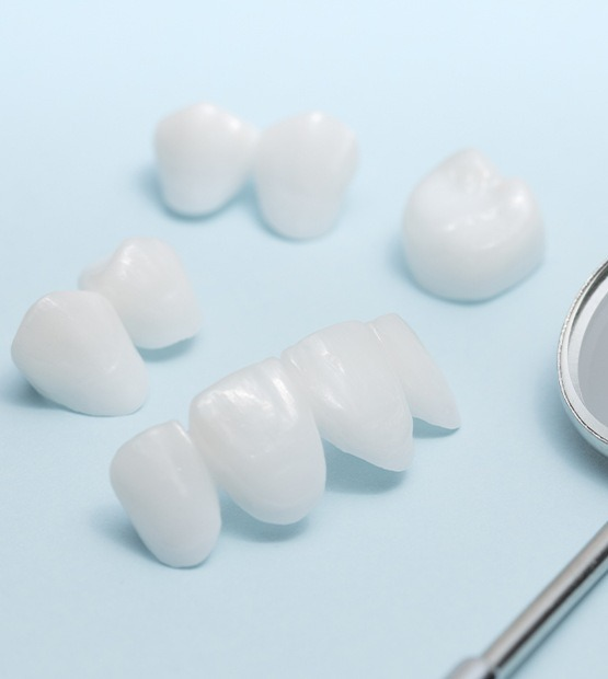 Different types of porcelain veneers and Lumineers prior to placement
