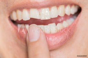 smile with a chipped front tooth